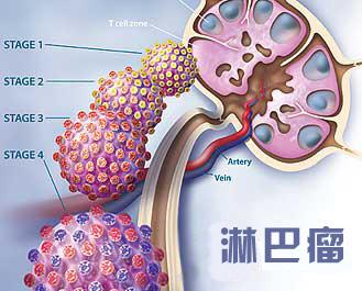 关于淋巴瘤