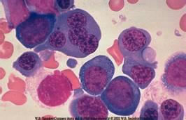 急性淋巴细胞白血病