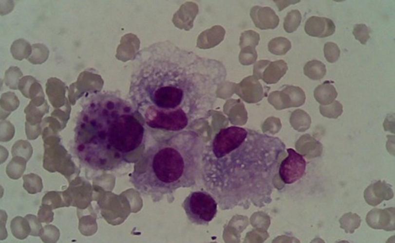 噬血细胞综合征